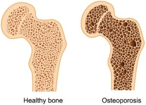 what is osteoporosis classes at southside physiotherapy clinic