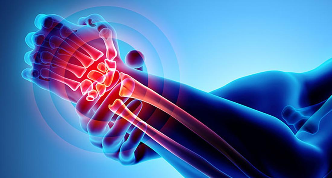 Arthritis-Rheumatology